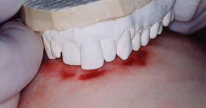 Forensic Odontology What Is Forensic Ondontology